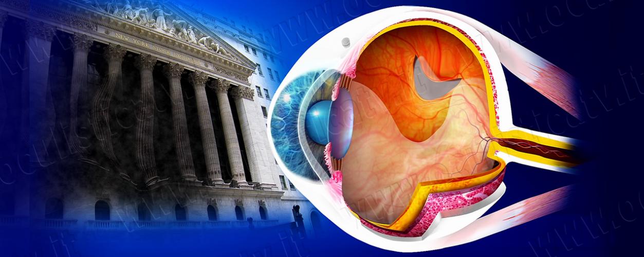 17. Distacco di retina_Vitrectomia per il distacco di retina_VL