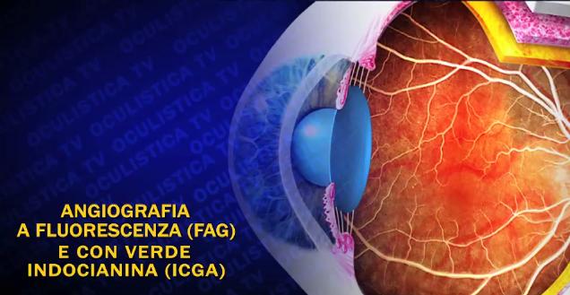angiografiae-fluorescenza