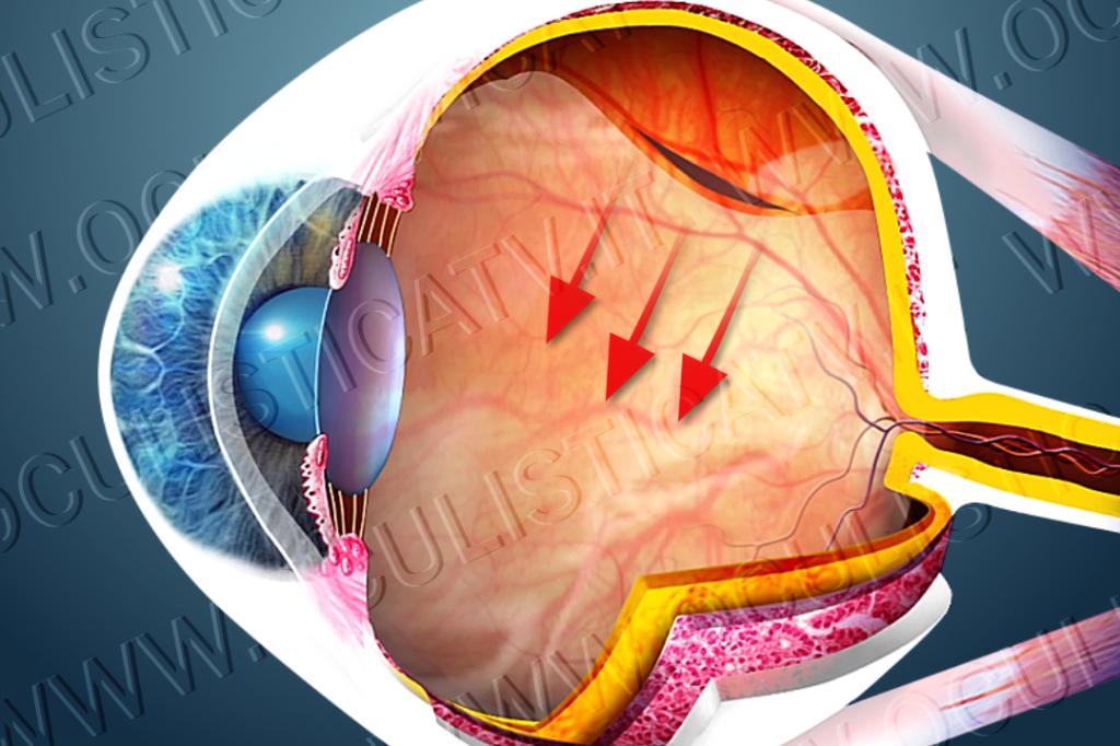 Cosa provoca il distacco di retina