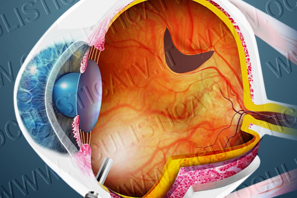 Il distacco di retina