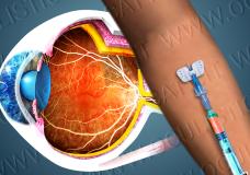 L'angiografia a fluorescenza