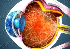 L'angiografia a fluorescenza per esaminare la coroide (ICGA)2