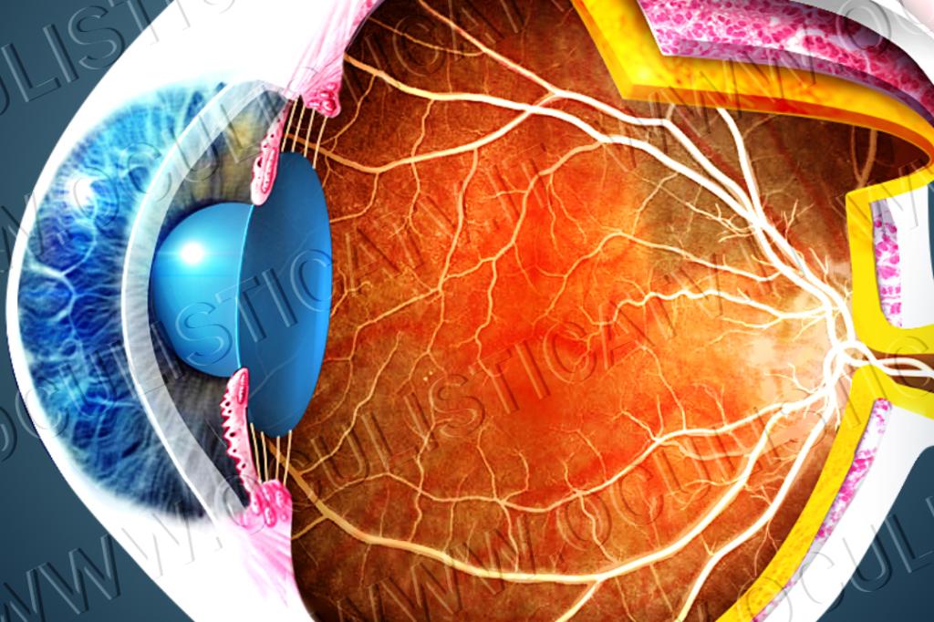 L'angiografia a fluorescenza per esaminare la retina (FAG)