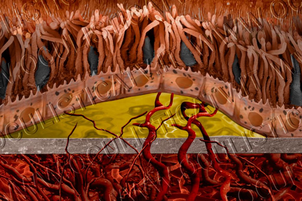 La neovascolarizzazione patologica