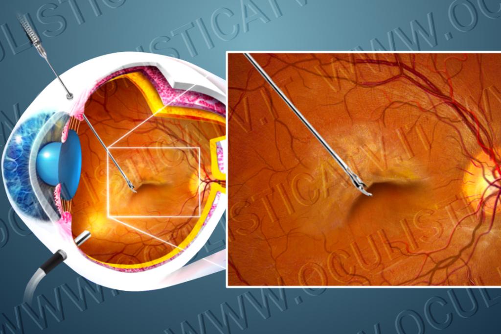 La vitrectomia per la cura del pucker maculare