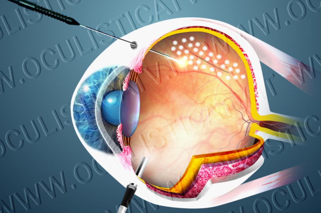 Trattamenti per la rottura e il distacco di retina