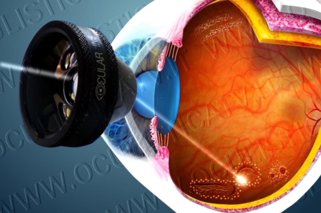 Trattamento laser profilattico per il distacco di retina