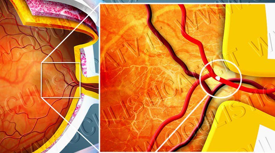 occlusione-arteria