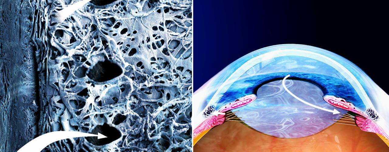 11. Terapia con trabeculoplastica laser_3 bis