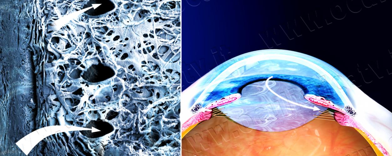 12. Glaucoma ad angolo aperto e terapia con trabeculoplastica laser_VL