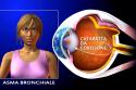 2. Cataratta da cortisone_2 (senza prof)
