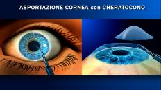 25. Trapianto di cornea_2