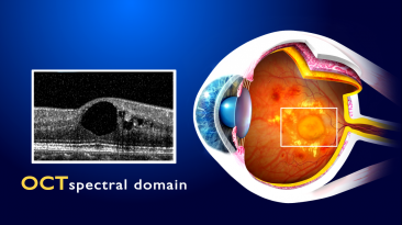 8. Edema maculare diabetico_1)