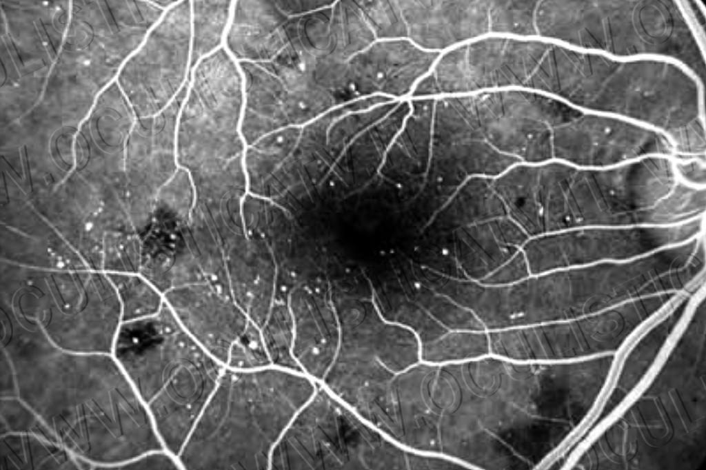 Come viene diagnosticata la retinopatia diabetica2