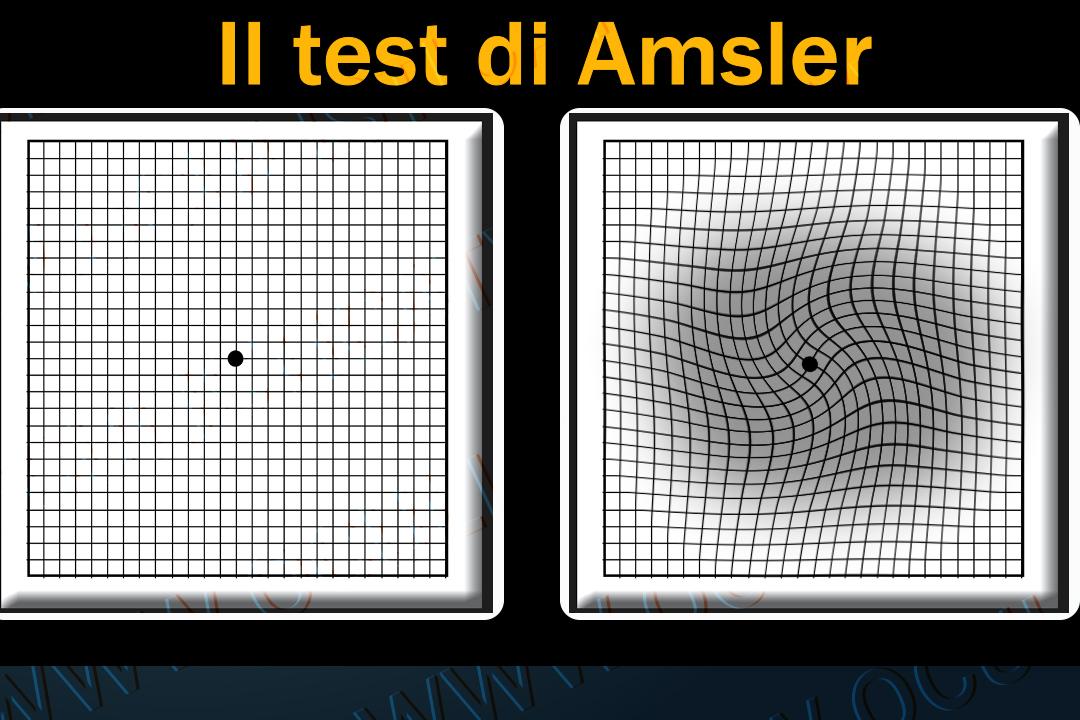 Hamer: Disturbi vari degli occhi - come si sviluppano