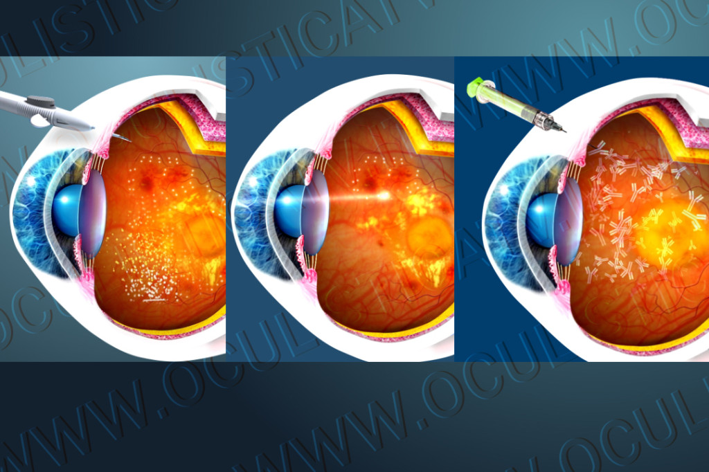 Cure per la retinopatia diabetica 2
