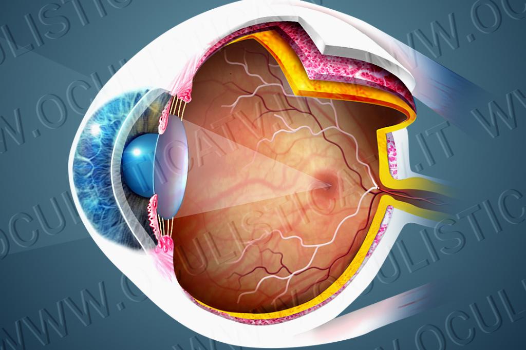 Diagnosi dell'occlusione dell'arteria retinica centrale