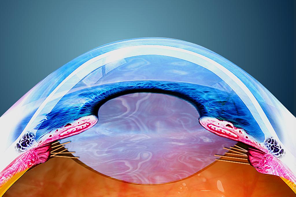 Fattori di rischio per il glaucoma