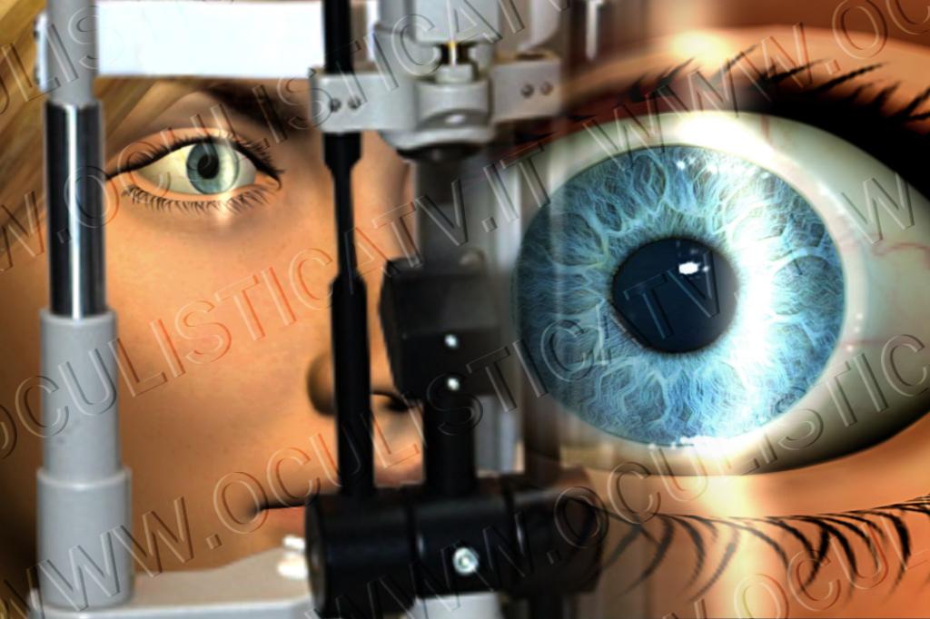 I rischi della trabeculoplastica laser
