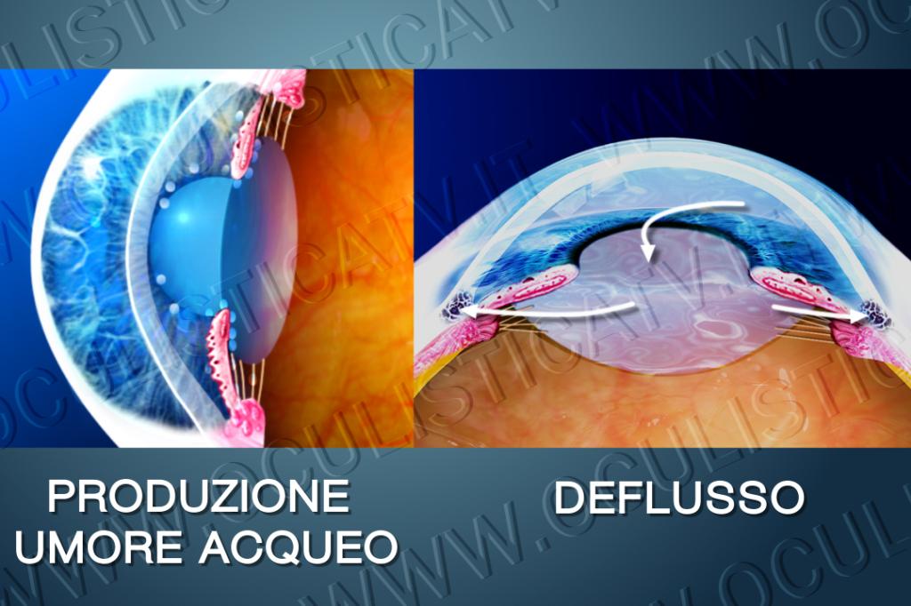 Il glaucoma ad angolo aperto