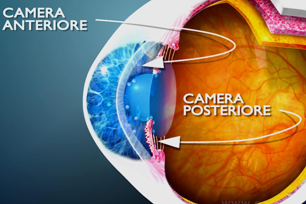 Il glaucoma ad angolo chiuso e l'attacco di glaucoma acuto