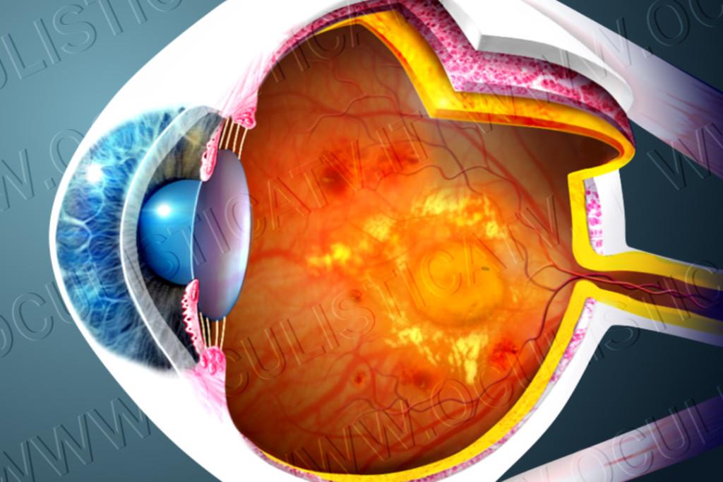 L'edema maculare diabetico (DME)