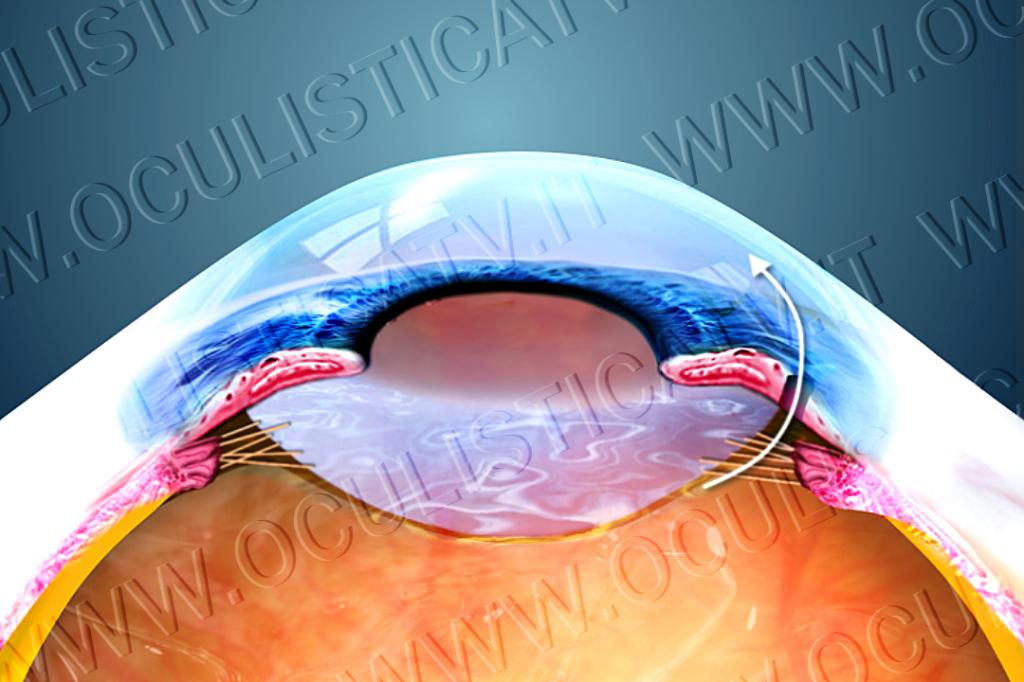 L'iridotomia laser