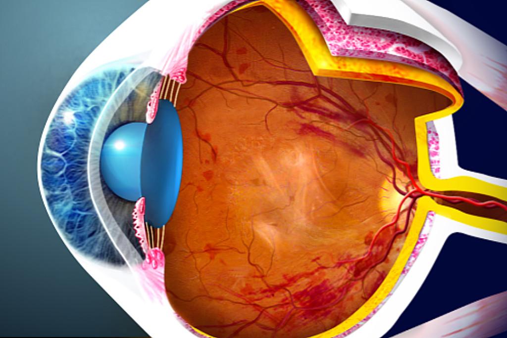 La retinopatia diabetica proliferante (PDR)