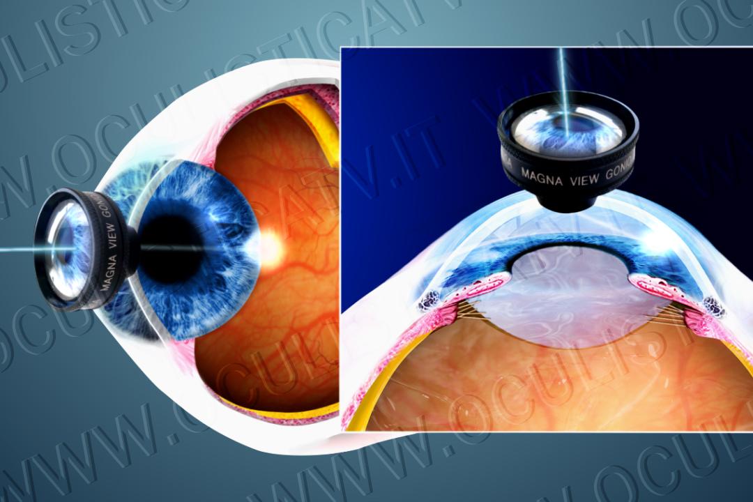 Pressione occhio alta pressione alta agli occhi for Sintomi pressione alta