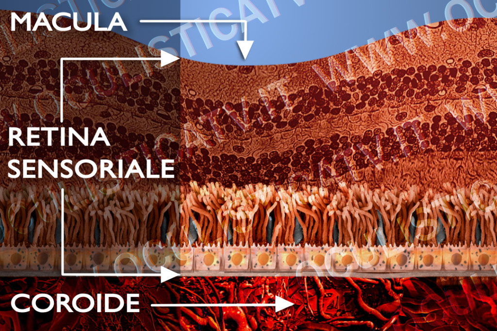 degenerazione maculare secca sintomi