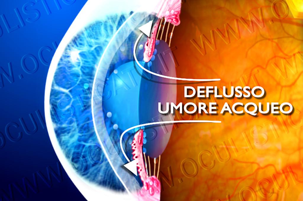 Tipi di glaucoma