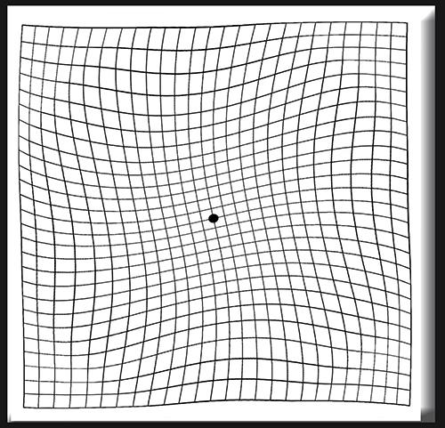 Descrizione: Griglia di Amsler: percezione distorta delle linee dritte nella zona centrale della visione
