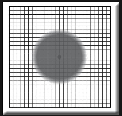 Descrizione: Griglia di Amsler: percezione sfuocata/presenza di un punto cieco nella visione centrale