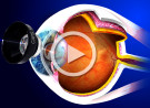 Cataratta secondaria e capsulotomia laser YAG