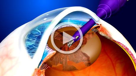 Cataratta e terapia chirurgica con ultrasuoni torsionali