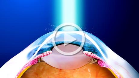 Chirurgia refrattiva con laser a eccimeri: fotocheratectomia refrattiva (PRK)