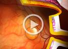 Corioretinopatia sierosa centrale (CSCR): terapia