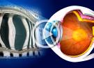 Degenerazione maculare legata all'età (AMD): terapia della forma essudativa