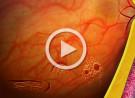Degenerazioni retiniche periferiche e terapia laser preventiva