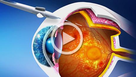 Edema maculare diabetico (DME): farmacochirurgia