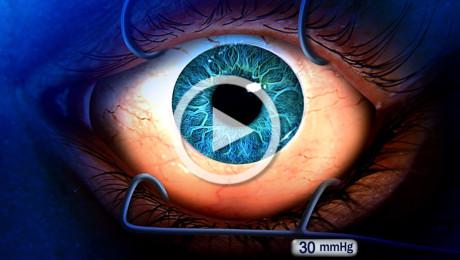 Glaucoma ad angolo aperto e terapia chirurgica