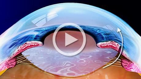 Glaucoma ad angolo chiuso e attacco di glaucoma acuto: terapia con iridotomia laser