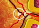 Occlusione dell'arteria retinica centrale