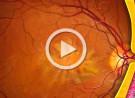 Pucker maculare e terapia chirurgica