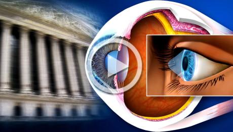 Trapianto di cornea: terapia chirurgica del cheratocono