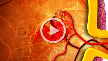 Occlusione della vena retinica centrale: terapia laser e chirurgica