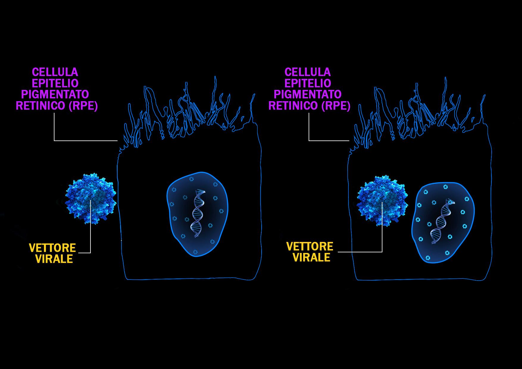 """La retina dei pazienti con AMD neovascolare trasformata in """"fabbrica"""" di anti-VEGF: nuove strategie terapeutiche per rendere i pazienti affetti da AMD neovascolare indipendenti dalle iniezioni intravitreali"""