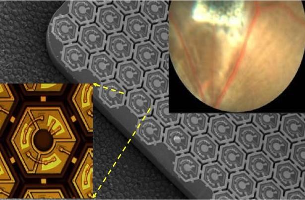 Ripristino della visione nei non vedenti mediante protesi retinica fotovoltaica (Daniel Palanker, Stanford University, Stanford, CA)